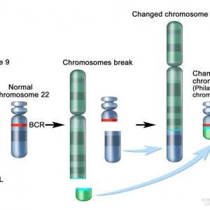 General Information About Chronic Myelogenous Leukemia